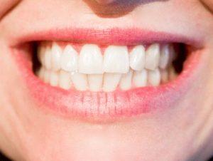 Prosthodontics Merced dentist smile