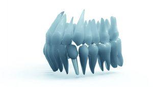 Merced dental implant