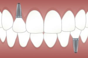 Dental Implants Merced dentist