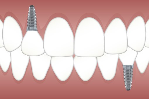 September is Dental Implant Awareness Month!