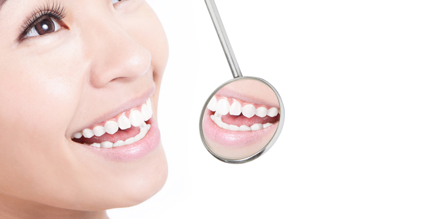 Teeth Whitening Merced