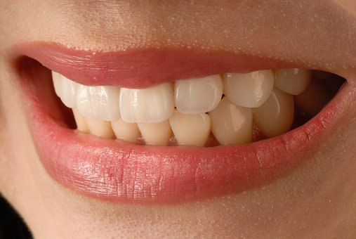 teeth whitening services Merced dentist